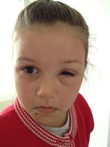 Food allergies contact reaction swelling