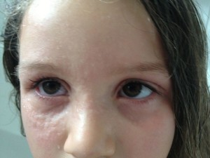 Food allergies contact only reaction